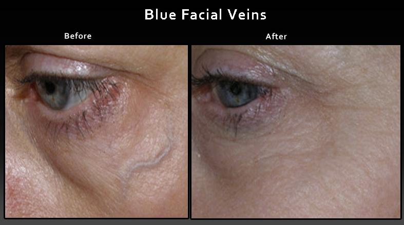 facial-spider-veins